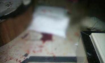 Casal se fere ao ser atingido por espelho de motel em Araucária