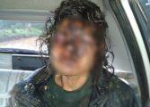Garota de programa é encontrada machucada e desfigurada em Araucária