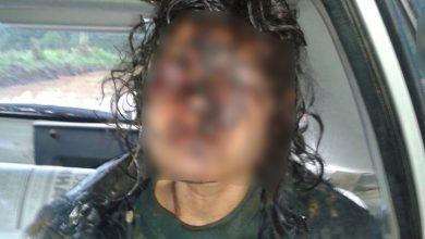 Foto de Garota de programa é encontrada machucada e desfigurada em Araucária