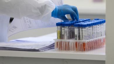 Foto de Com quase 12 mil casos de coronavírus, Paraná tem média de 121 confirmações por dia